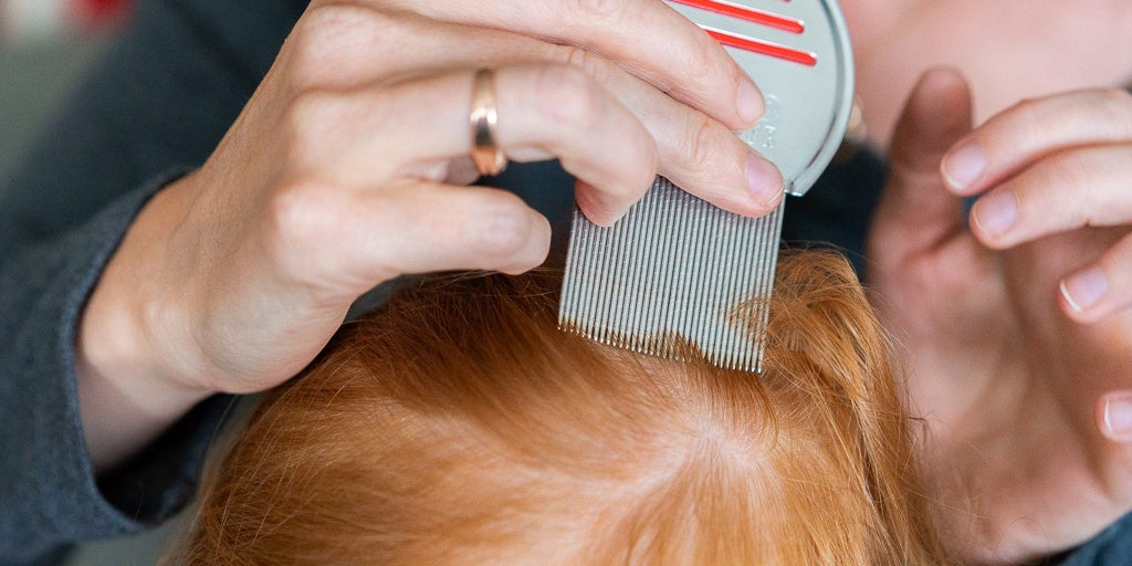 Tips for the best anti lice treatment